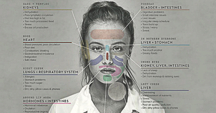 Face Mapping The Location Of The Acne Can Reveal Problem With These - Acne face map organs