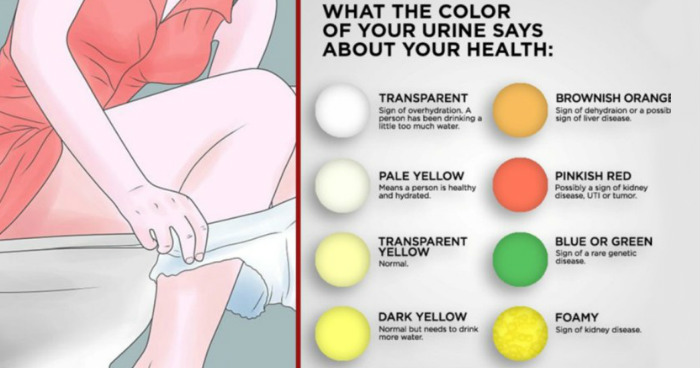 Image result for What The Color Of Your Urine Says About Your Health!!!